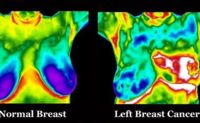 Thermography, The New Mammography image